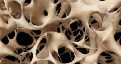osteoporosis single image 500x450
