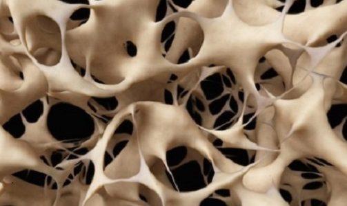 Tackling Osteoporosis